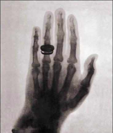 Фотография Вильгельма Конрада Рентге́на,  Первый человеческий рентген, 1896 год