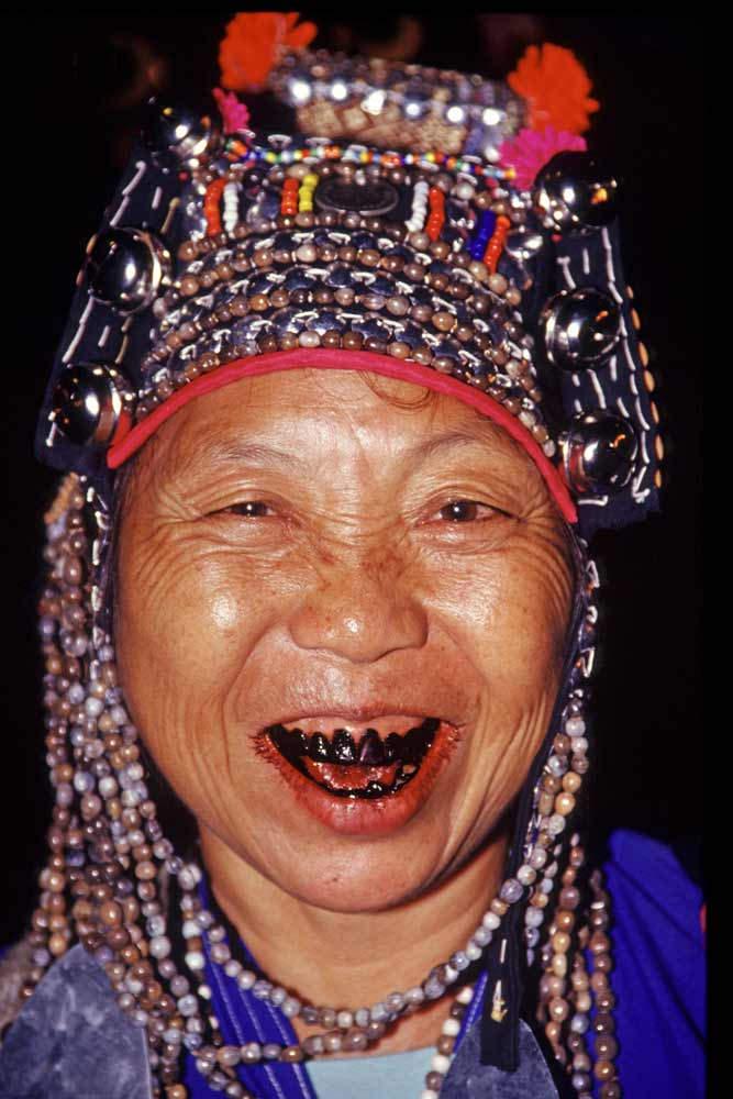 Эволюция женской красоты. Странные тенденции Черные зубы