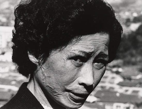 Последствия атомного взрыва в работах Шомеи Томацу (Shomei Tomatsu) 7