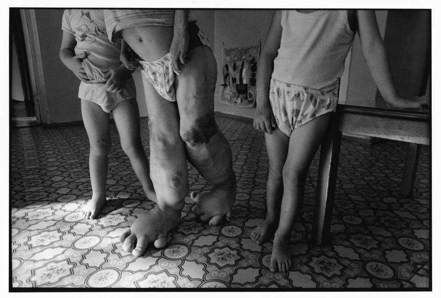 «Последствия радиации на Чернобыле, 1997-2000» Пола Фуско (Paul Fusco) 22